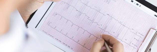 Niewydolność serca – algorytm leczenia