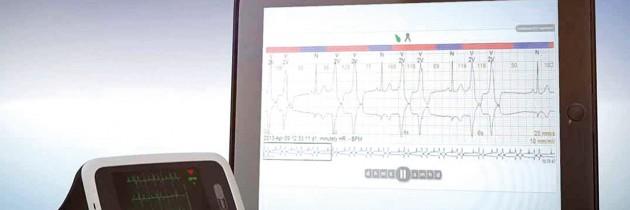 Telekardiologia nowe spojrzenie na diagnostykę arytmii